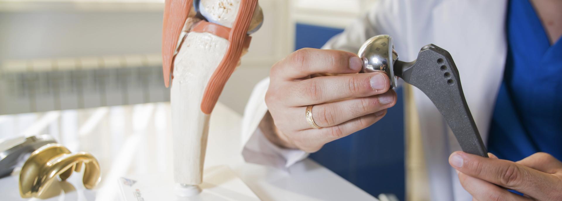 Protesi d'anca: cos'è, le tipologie principali e i materiali utilizzati